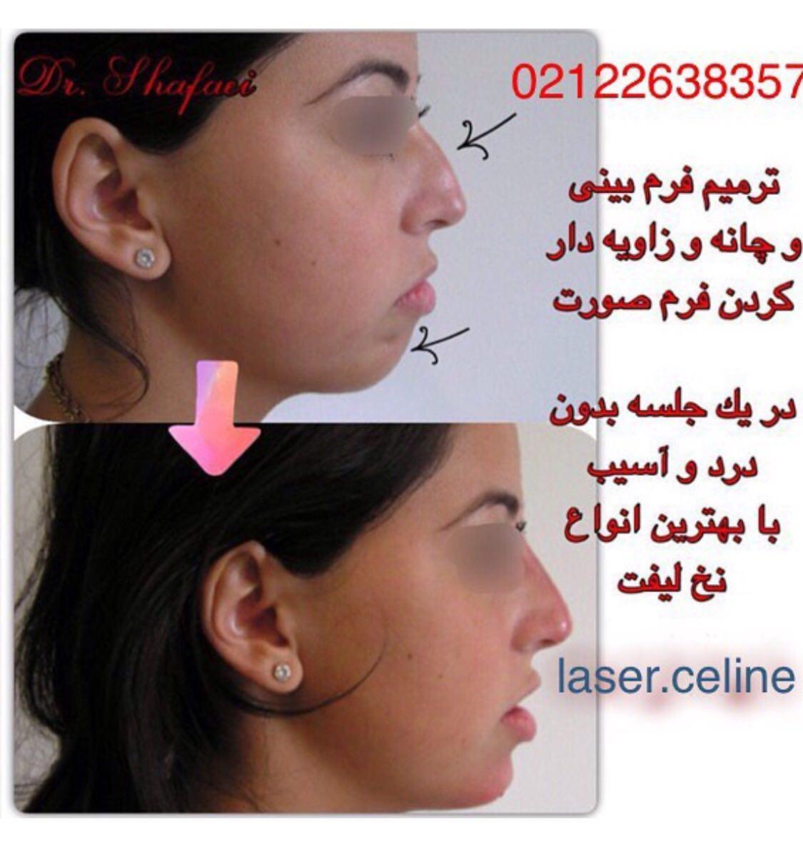 عمل زیبایی فرم صورت